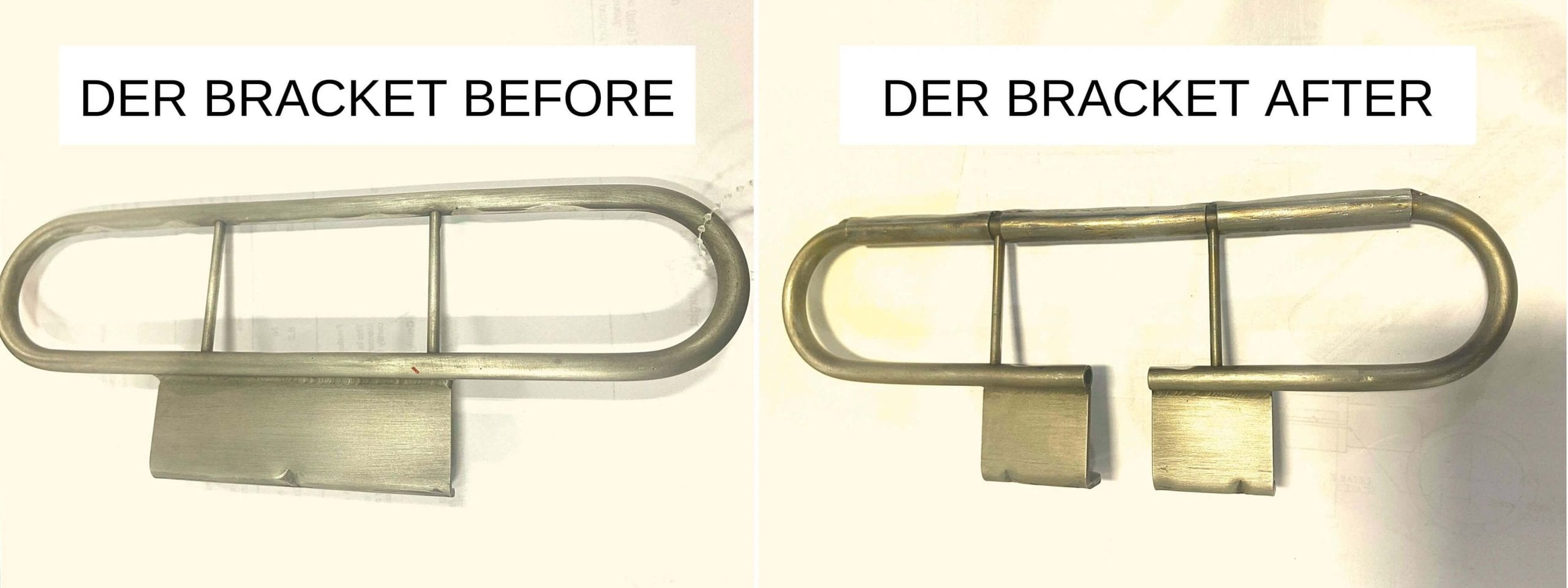 der-bracket-before-and-after
